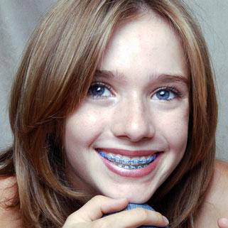 Color My Braces Northwest Orthodontics